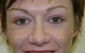 35 yo woman, cheek implants and lower lid blepharoplasty after 1486149