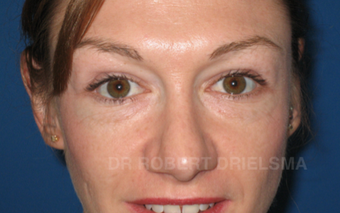 35 yo woman, cheek implants and lower lid blepharoplasty before 1486149