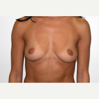 35-44 year old woman treated with Breast Augmentation before 3377471