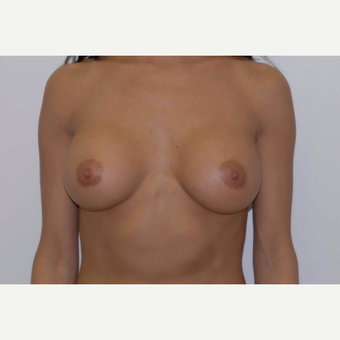 35-44 year old woman treated with Breast Augmentation after 3377471