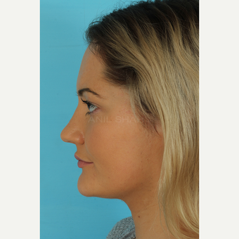 25-34 year old woman treated with Rhinoplasty after 3691104