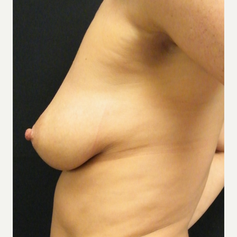 35-44 year old woman treated with Breast Augmentation before 3465739