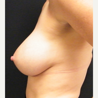 35-44 year old woman treated with Breast Augmentation after 3465739