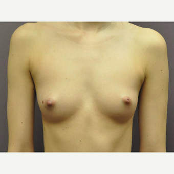 "18-24 year old woman treated with Breast Augmentation with the ""Secret Scar"" Axillary Approach before 3059542"