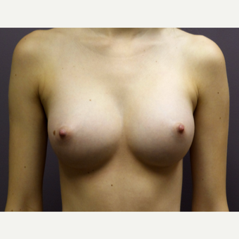 "18-24 year old woman treated with Breast Augmentation with the ""Secret Scar"" Axillary Approach after 3059542"