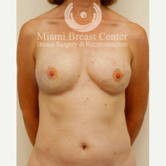 45-54 year old woman with Breast Reconstruction and fat transfer after 2217037