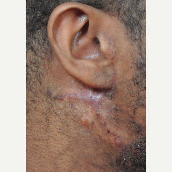 25-34 year old man treated with Scar Removal after 3696312