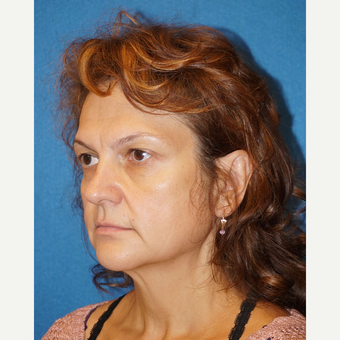 49 year old man treated with Facelift before 3576611
