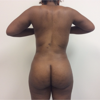 35-44 year old woman treated with Fat Transfer after 3590446