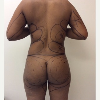 35-44 year old woman treated with Fat Transfer before 3590446