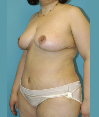 25-34 year old woman treated with Mommy Makeover 1672499