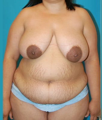 25-34 year old woman treated with Mommy Makeover before 1672499