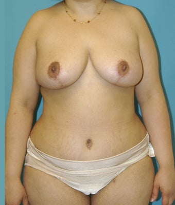 25-34 year old woman treated with Mommy Makeover after 1672499