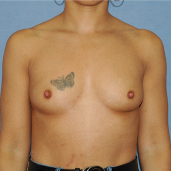 35-44 year old woman treated with Breast Augmentation before 3141785