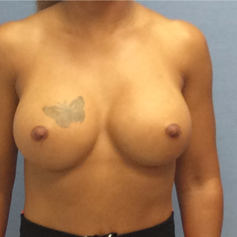 35-44 year old woman treated with Breast Augmentation after 3141785