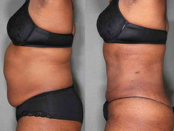 "Liposuction, Abs and Flanks 49 Year Old Female and Lost 10"" before 1027028"