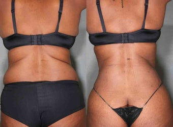 "Liposuction, Abs and Flanks 49 Year Old Female and Lost 10"" after 1027028"