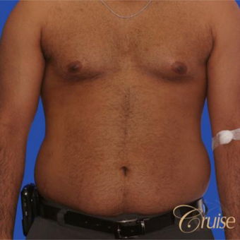 23 year old with moderate gynecomastia before 3196747