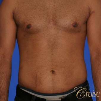 23 year old with moderate gynecomastia after 3196747