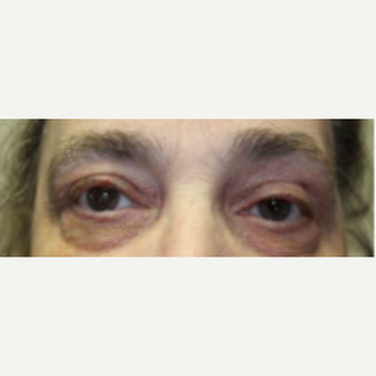 55-64 year old woman treated with Eyelid Surgery after 3238866