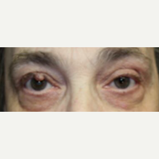 55-64 year old woman treated with Eyelid Surgery before 3238866