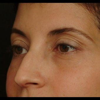 45-54 year old woman treated for Eyelid Surgery before 1479653