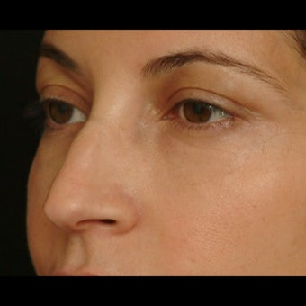 45-54 year old woman treated for Eyelid Surgery after 1479653