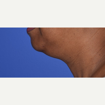 55-64 year old woman treated with Liposuction under chin before 3345667