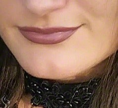 25-34 year old woman treated with Lip Augmentation before 3558547