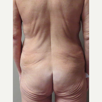 Body Lift for this 48 Year Old Woman before 3042857