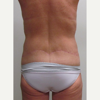 Body Lift for this 48 Year Old Woman after 3042857