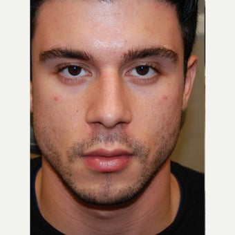 23 yr. old man treated with Silikon 1000, an off-label filler for permanent non-surgical rhinoplasty