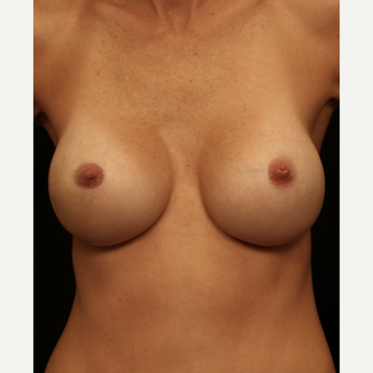 25-34 year old woman treated with Breast Implant Revision with Right Areolar Lift after 3099443