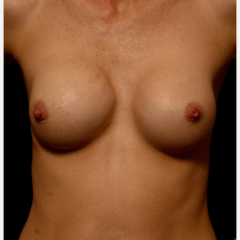 25-34 year old woman treated with Breast Implant Revision with Right Areolar Lift before 3099443