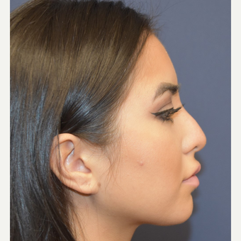 18-24 year old woman treated with Non Surgical Nose Job before 3854700