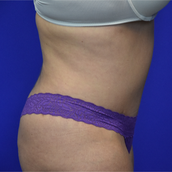 35-44 year old woman treated with Tummy Tuck after 3325794