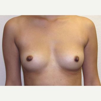22 year old woman treated with Breast Augmentation before 3685435