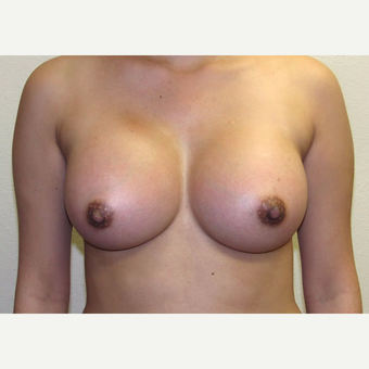 22 year old woman treated with Breast Augmentation after 3685435