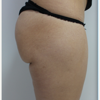 18-24 year old woman treated with Brazilian Butt Lift before 3184626
