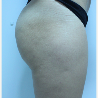 18-24 year old woman treated with Brazilian Butt Lift after 3184626