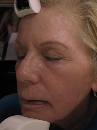 Laser Resurfacing after 1025946