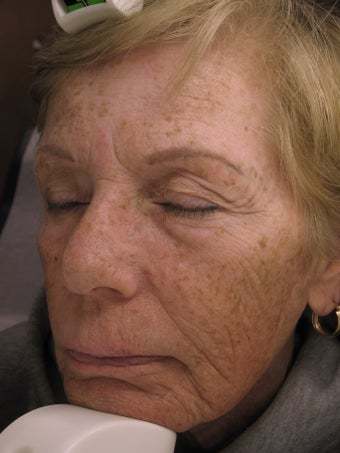 Laser Resurfacing before 1025946