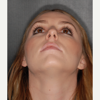 18-24 year old woman treated with Septoplasty 1 year post-op before 3499825