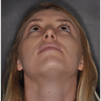 18-24 year old woman treated with Septoplasty 1 year post-op after 3499825