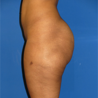 25-34 year old woman treated with Butt Implants before 3401114