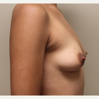 22 year old woman treated with Breast Augmentation before 3482954