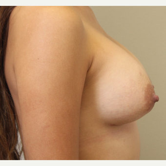 22 year old woman treated with Breast Augmentation after 3482954