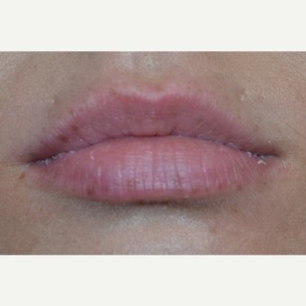 25-34 year old woman treated with Juvederm before 3809505