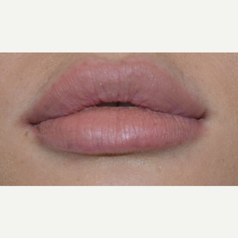 25-34 year old woman treated with Juvederm after 3809505