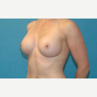 34 year old woman treated with Breast Implants after 3001082